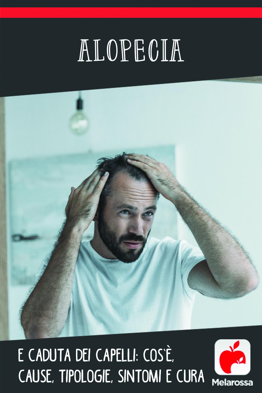 alopecia: cos0è, cause, sintomi e cure
