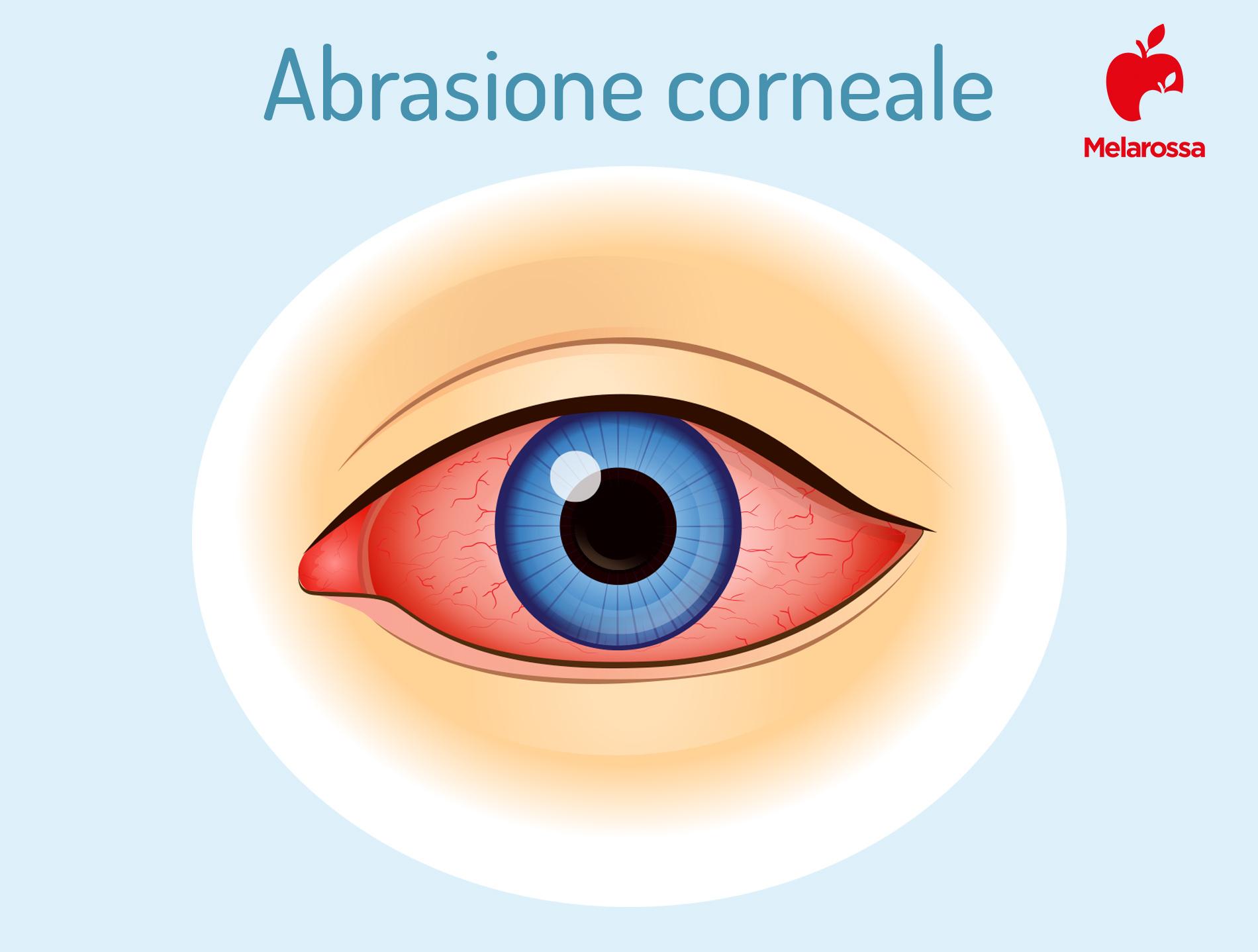 abrasione corneale: sintomi