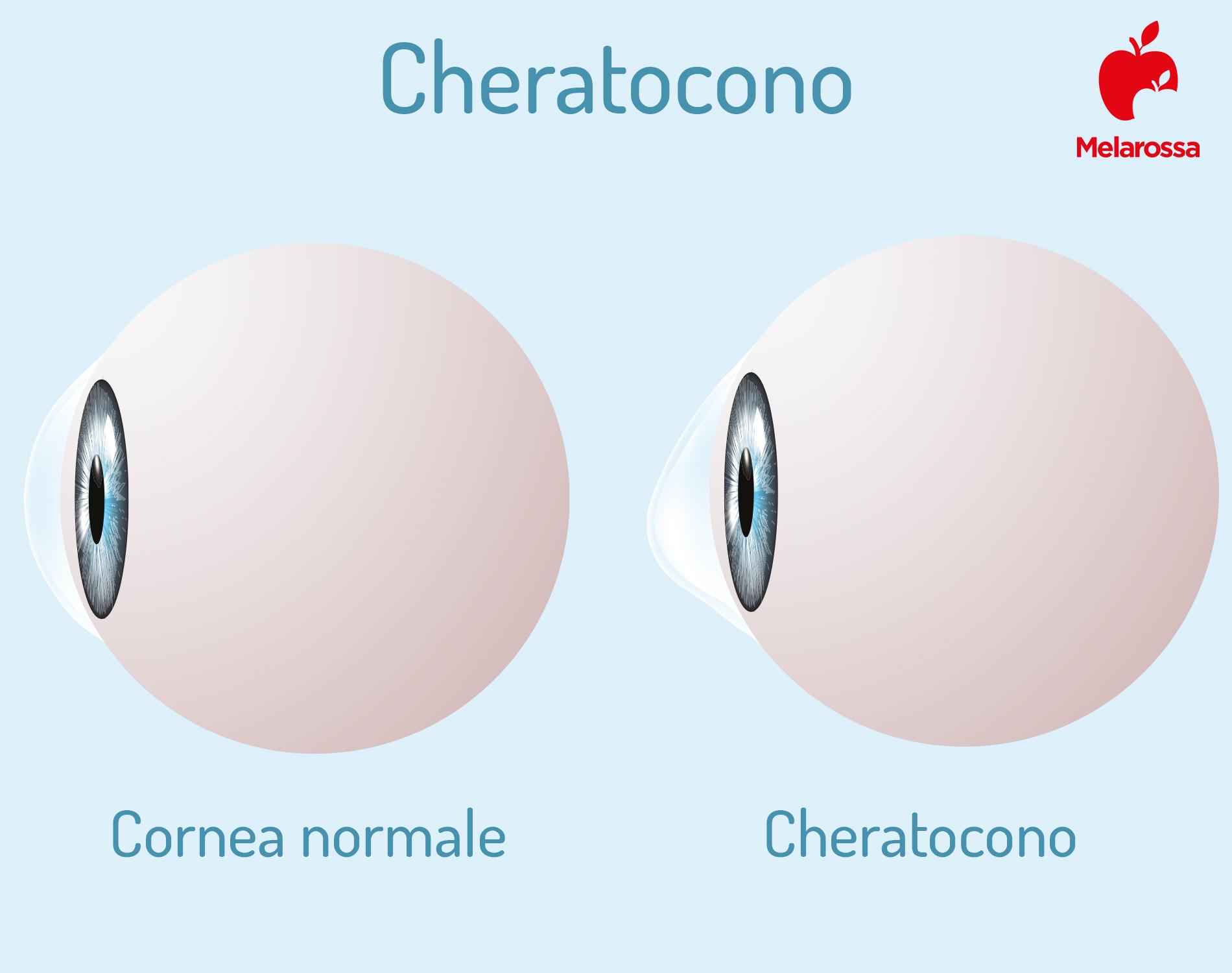 cornea e cheratocono- Infografica