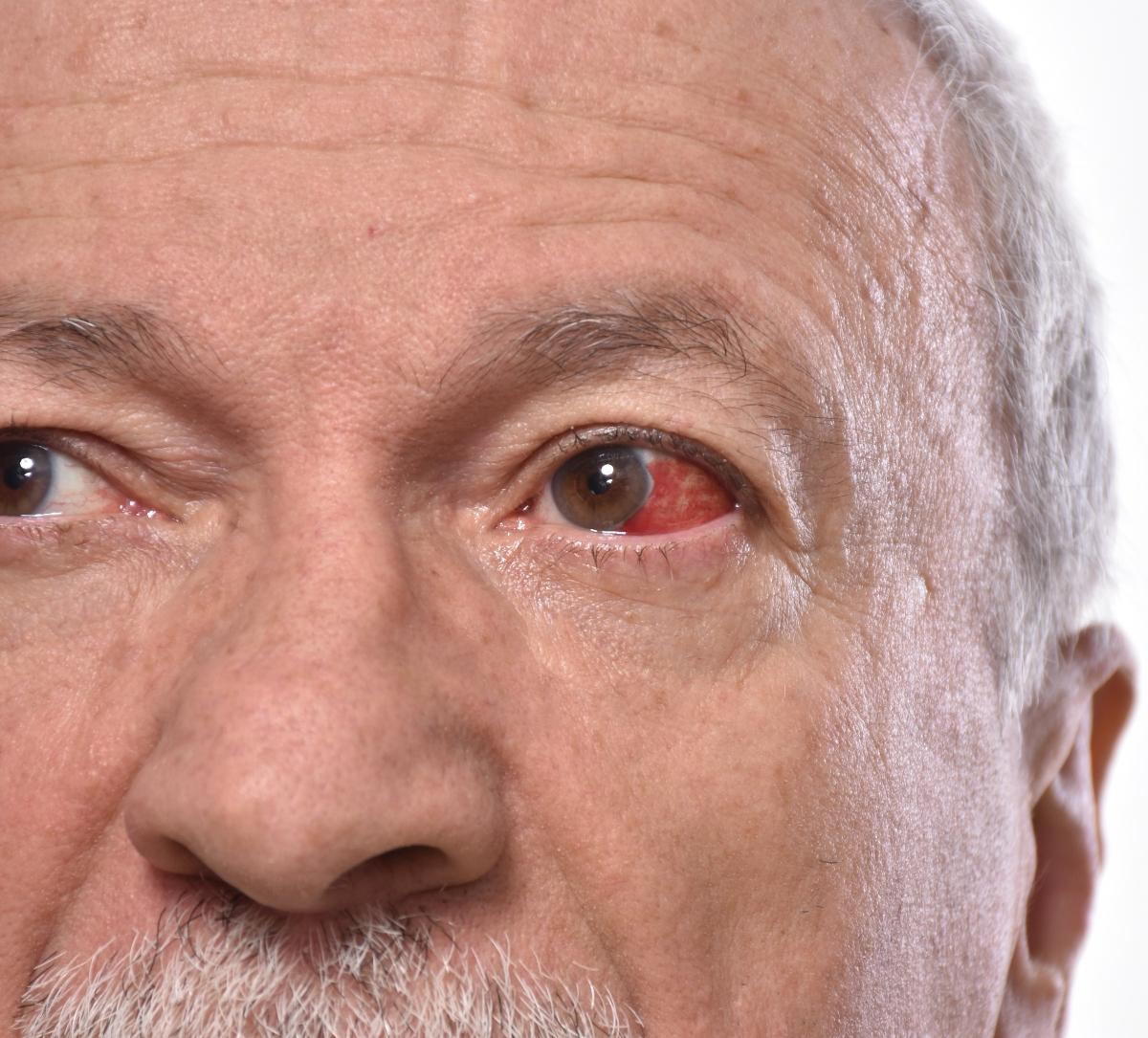 le patologie della cornea