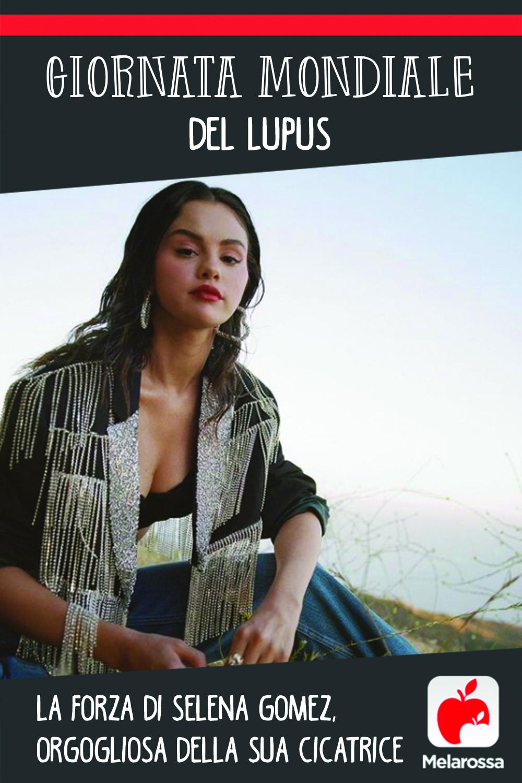 Giornata mondiale del Lupus: la forza di Selena Gomez, orgogliosa della sua cicatrice