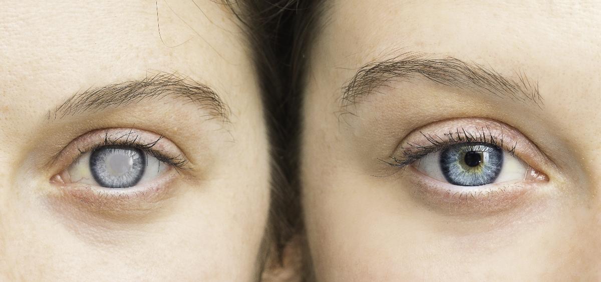 patologia della cornea: leucocoria