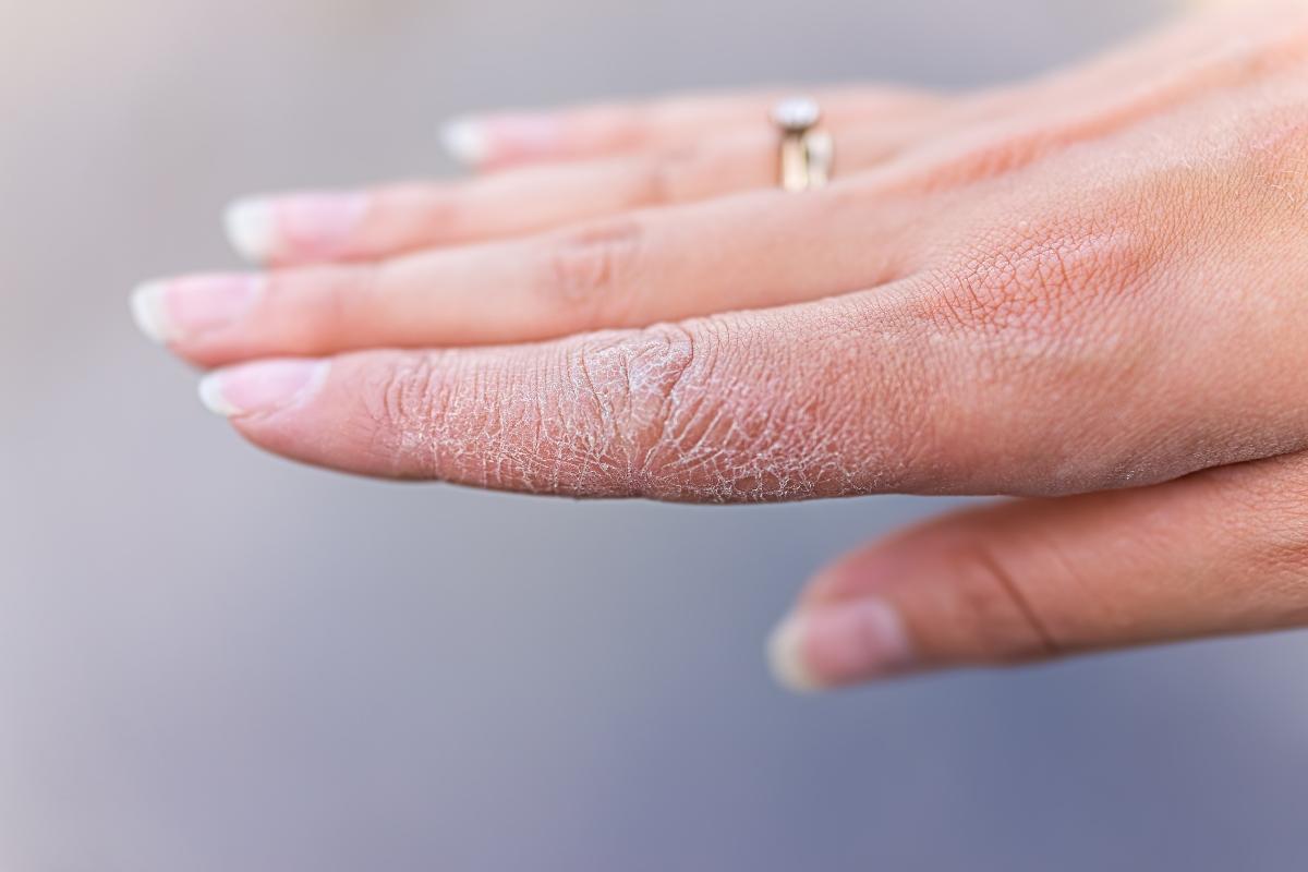 ragadi alle mani: cause e fattori di rischio
