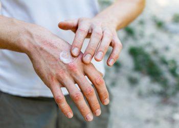 ragadi alle mani: cosa sono, cause, sintomi, cure