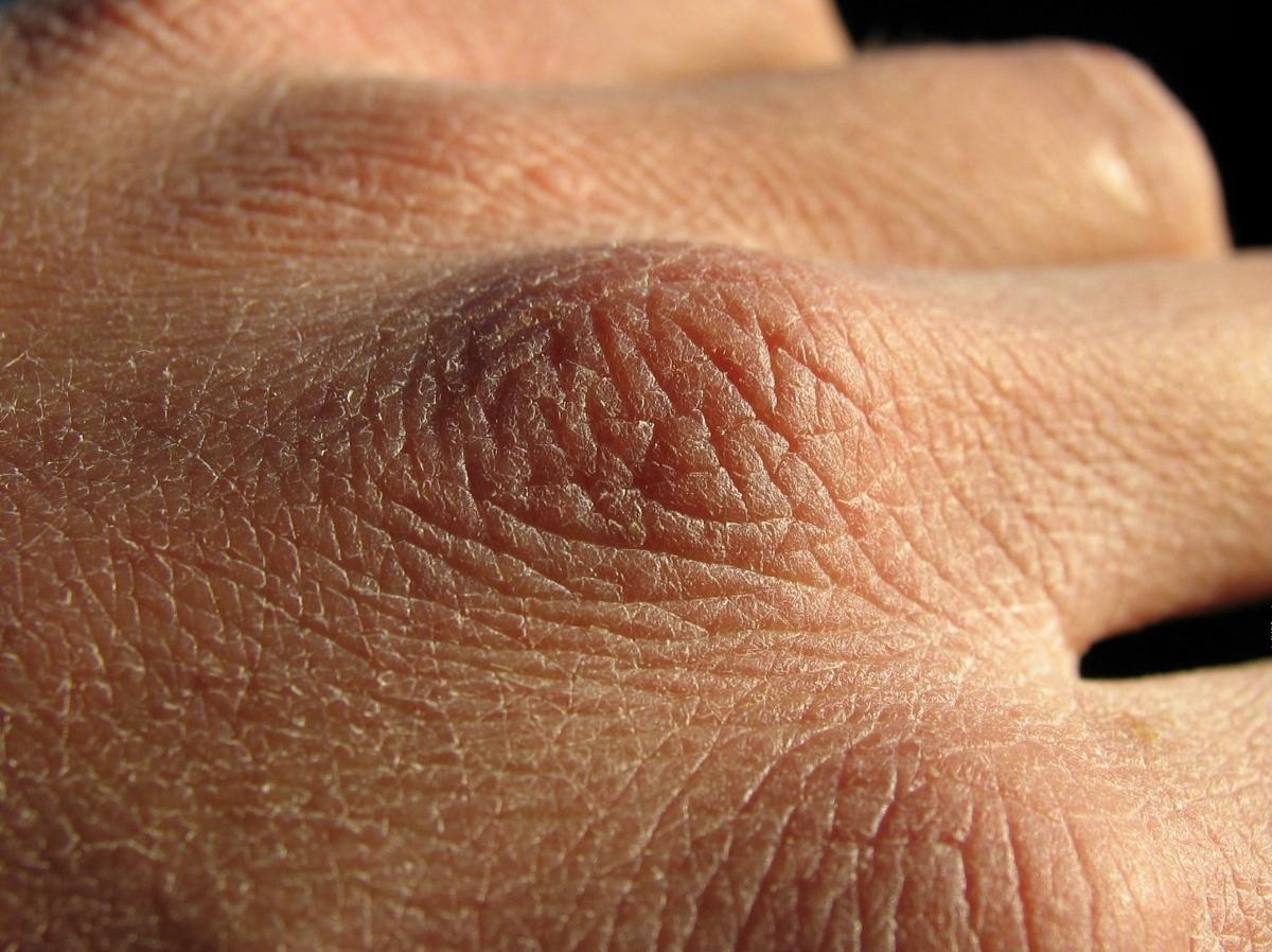ragadi alle mani: cure e prevenzione