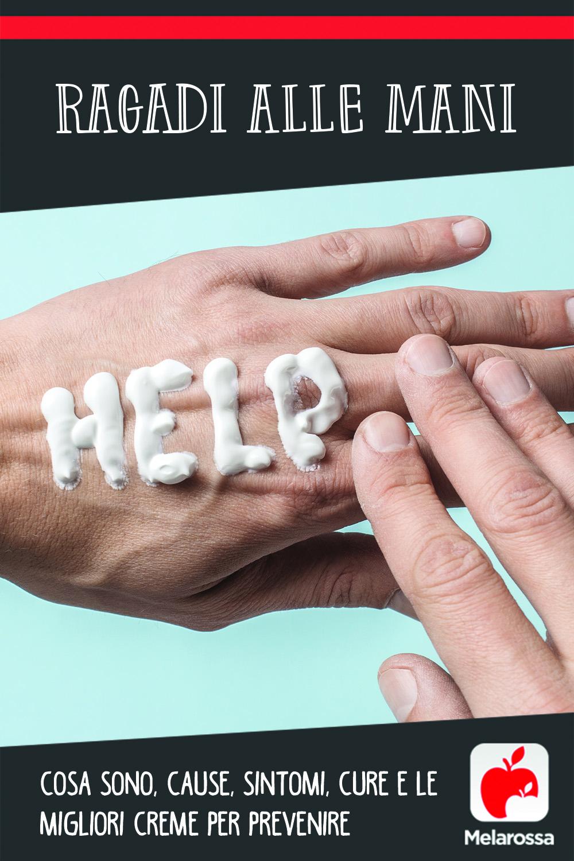 ragadi alle mani: cos'è, cause, sintomi, cure e le migliori creme