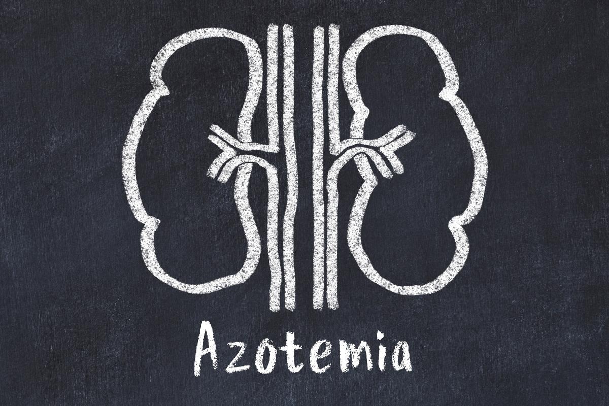 tipi di azotemia