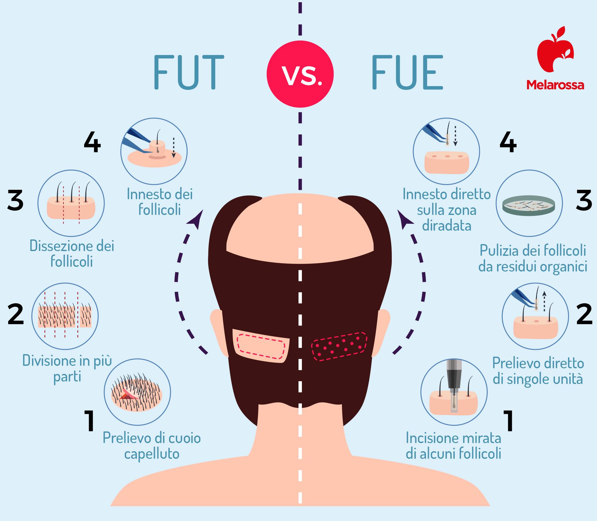 trapianti di capelli: metodi
