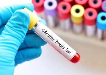 proteina C Reattiva: cos'è, perché e quando fare l'esame; interpretazioni dei risultati