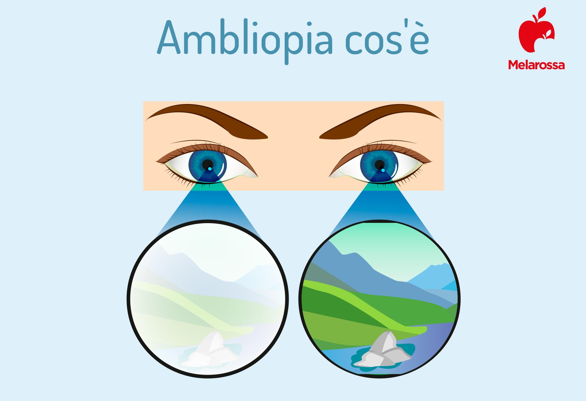 Ambliopia: cos'è