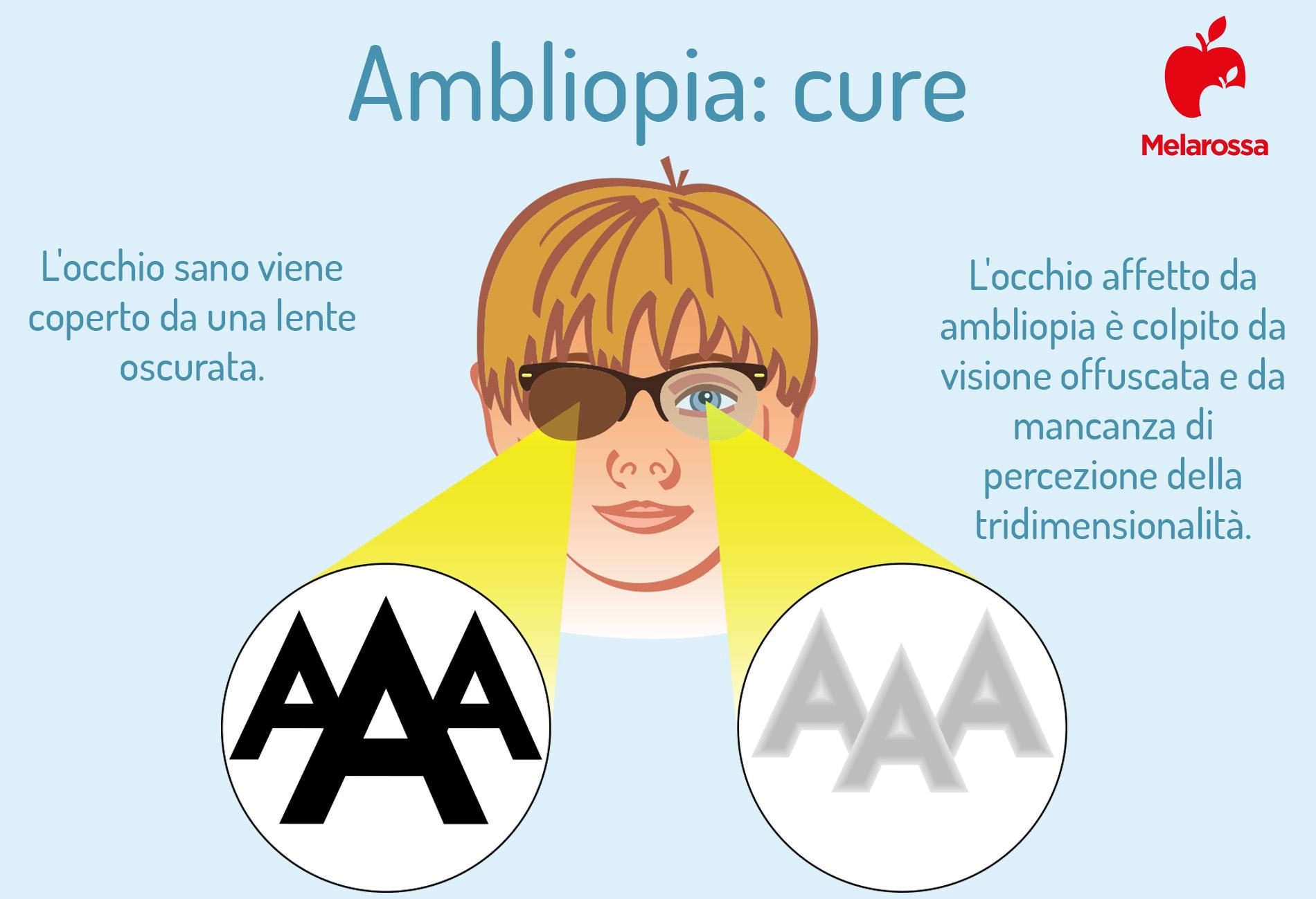 Ambliopia cure