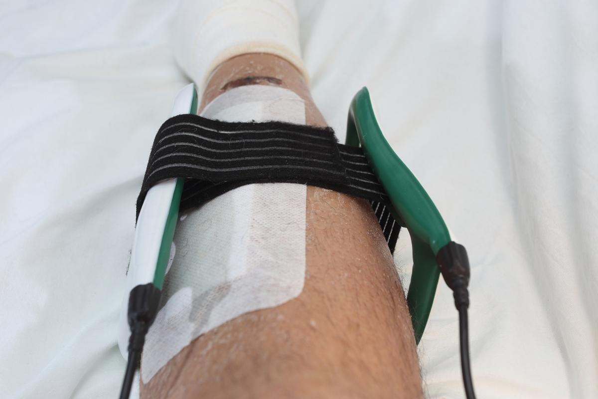 benefici della magnetoterapia