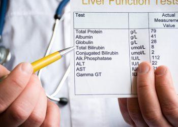 Bilirubina: cos'è, esame, valori, Tabella, patologie del fegato