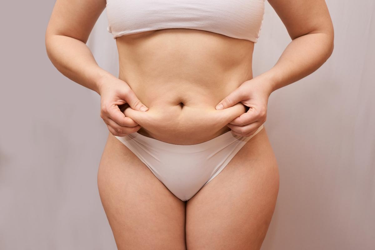 cellulite e ritenzione idrica: differenze