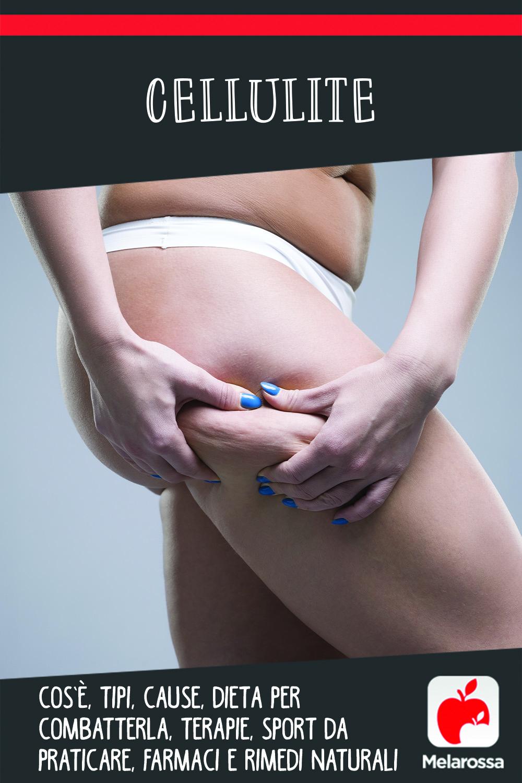 cellulite: cos', cause e come combatterla con alimentazione sport e creme