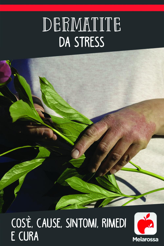 Dermatite da stress: cos'è cause, sintomi e cure