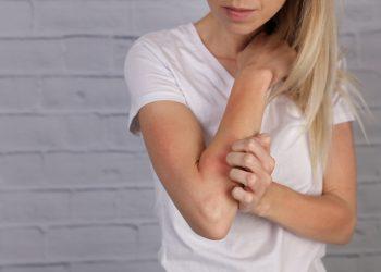 dermatite da stress: cos'è, cause, sintomi, cure e prevenzione