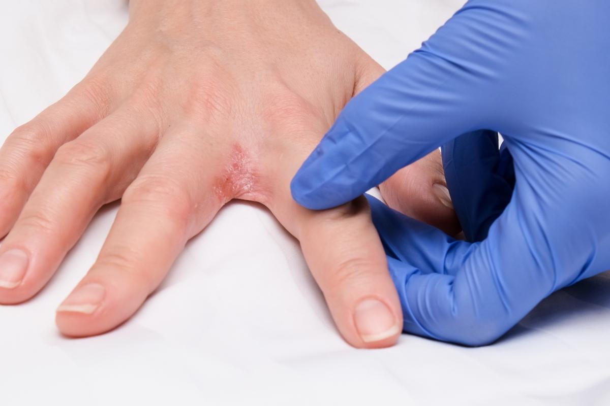 disidrosi e eczema