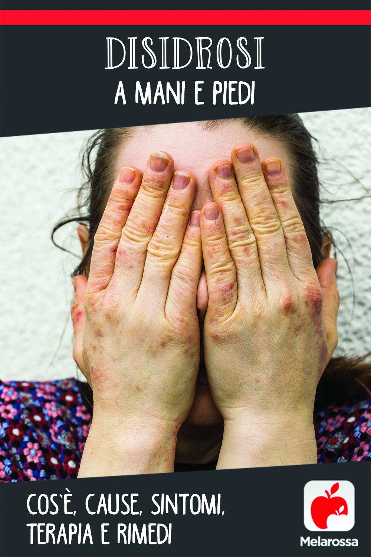 disidrosi: cos'è, cause, sintomi e cure