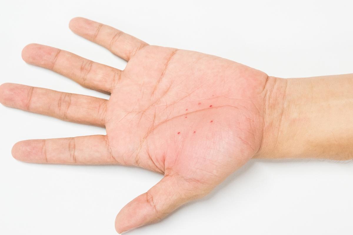 foto: disidrosi mani bambini