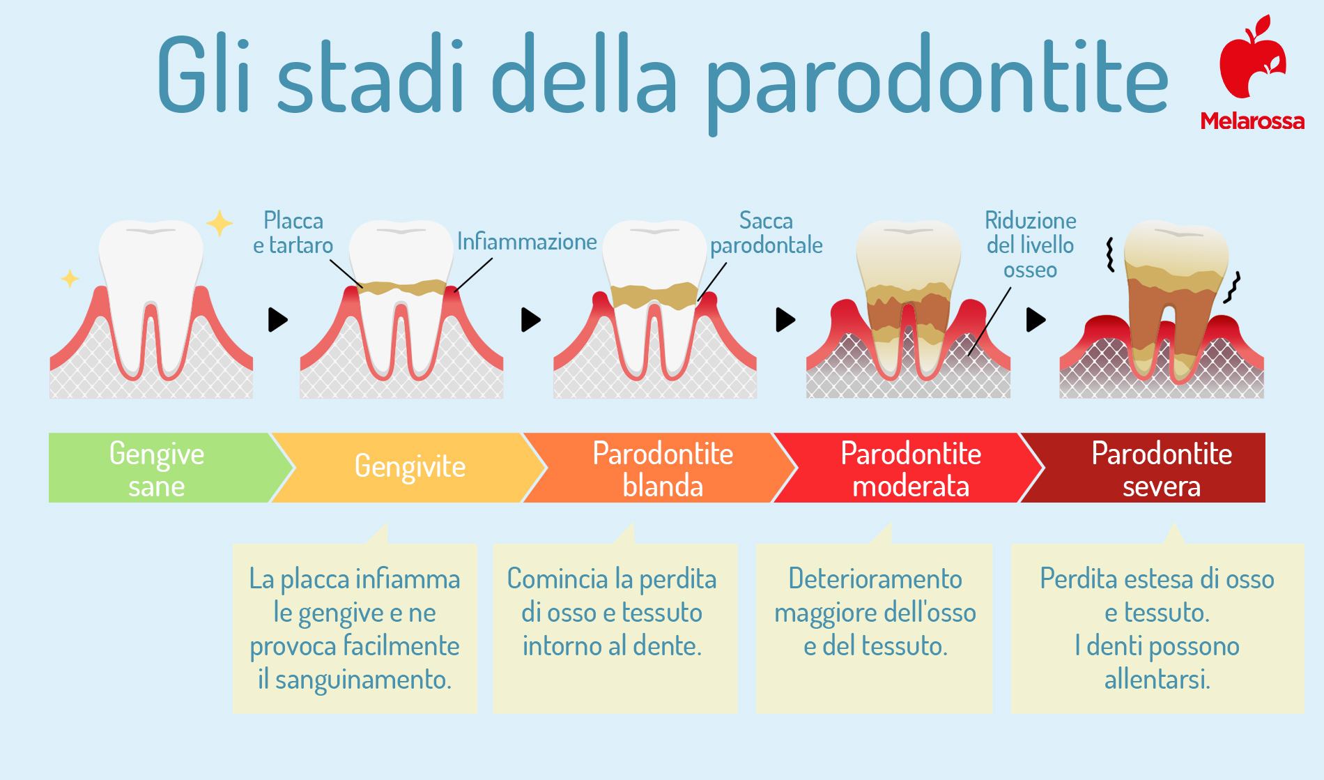 gengivite e parodontite