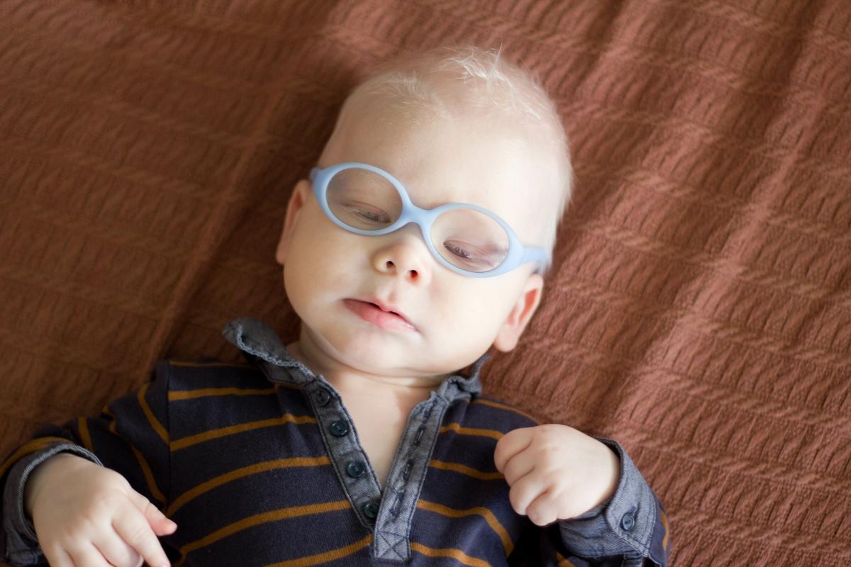 Nistagmo: cause, albinismo