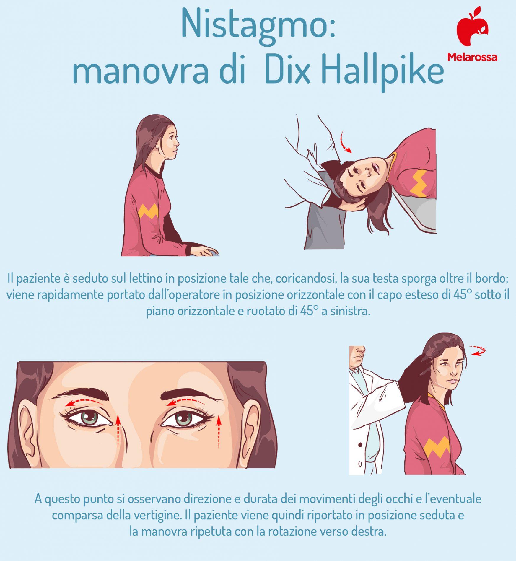 nistagmo: manovra di Dix Hallpike