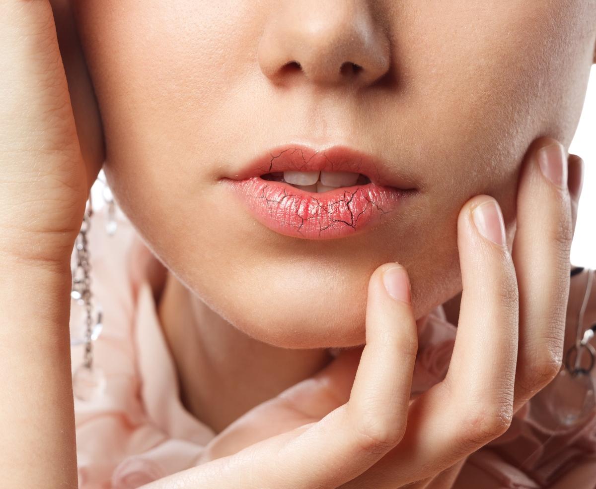 ragadi alle labbra: cosa fare