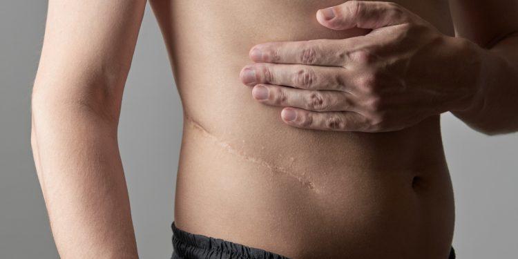 pielonefrite: cos'è, cause, sintomi, diagnosi, cure e prevenzione