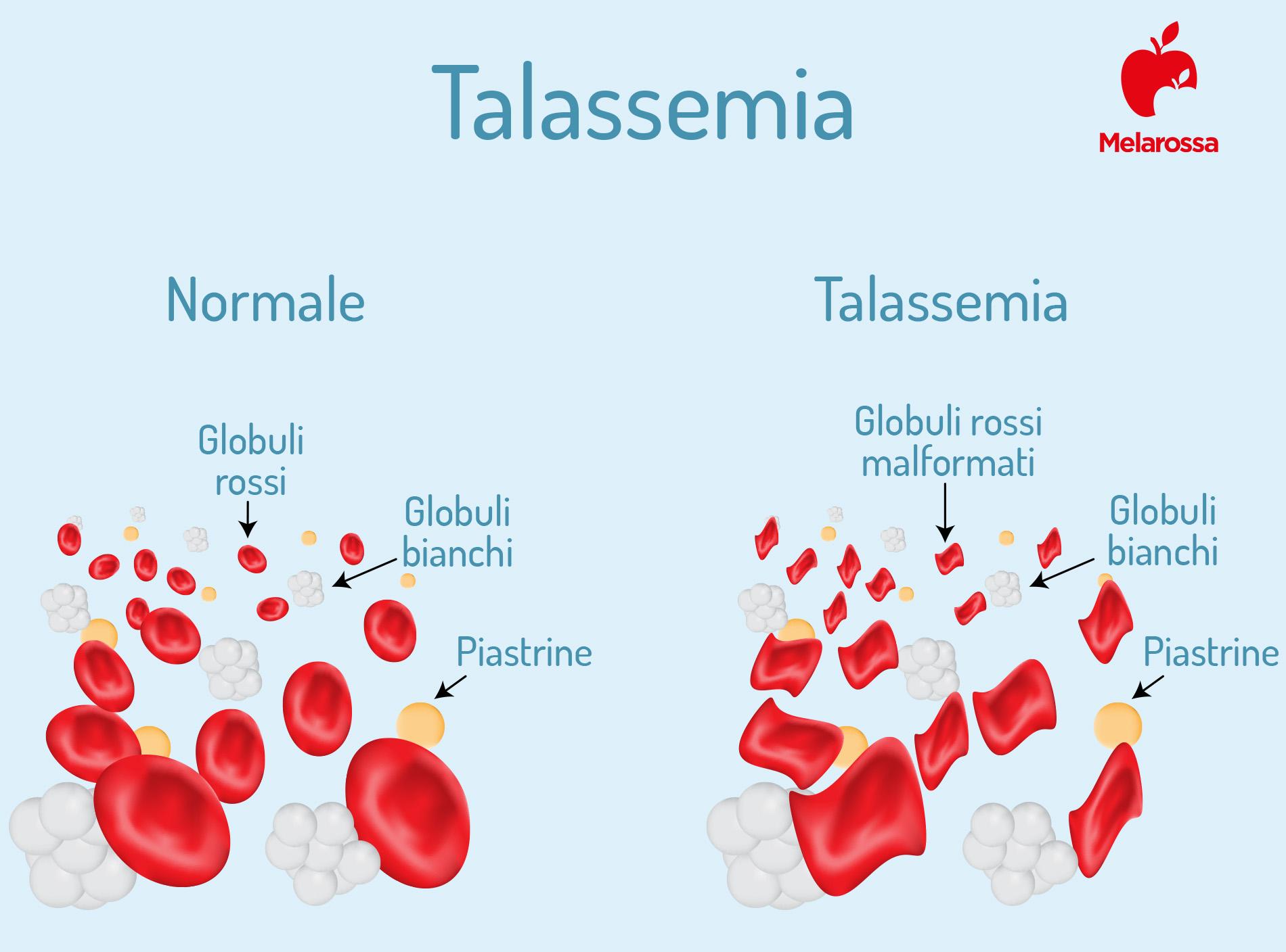 anemia mediterranea: globuli rossi