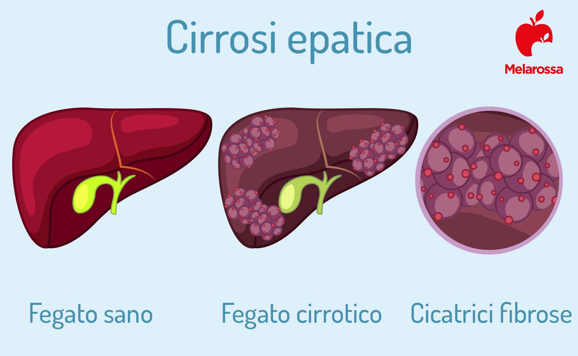 cirrosi epatica: cause