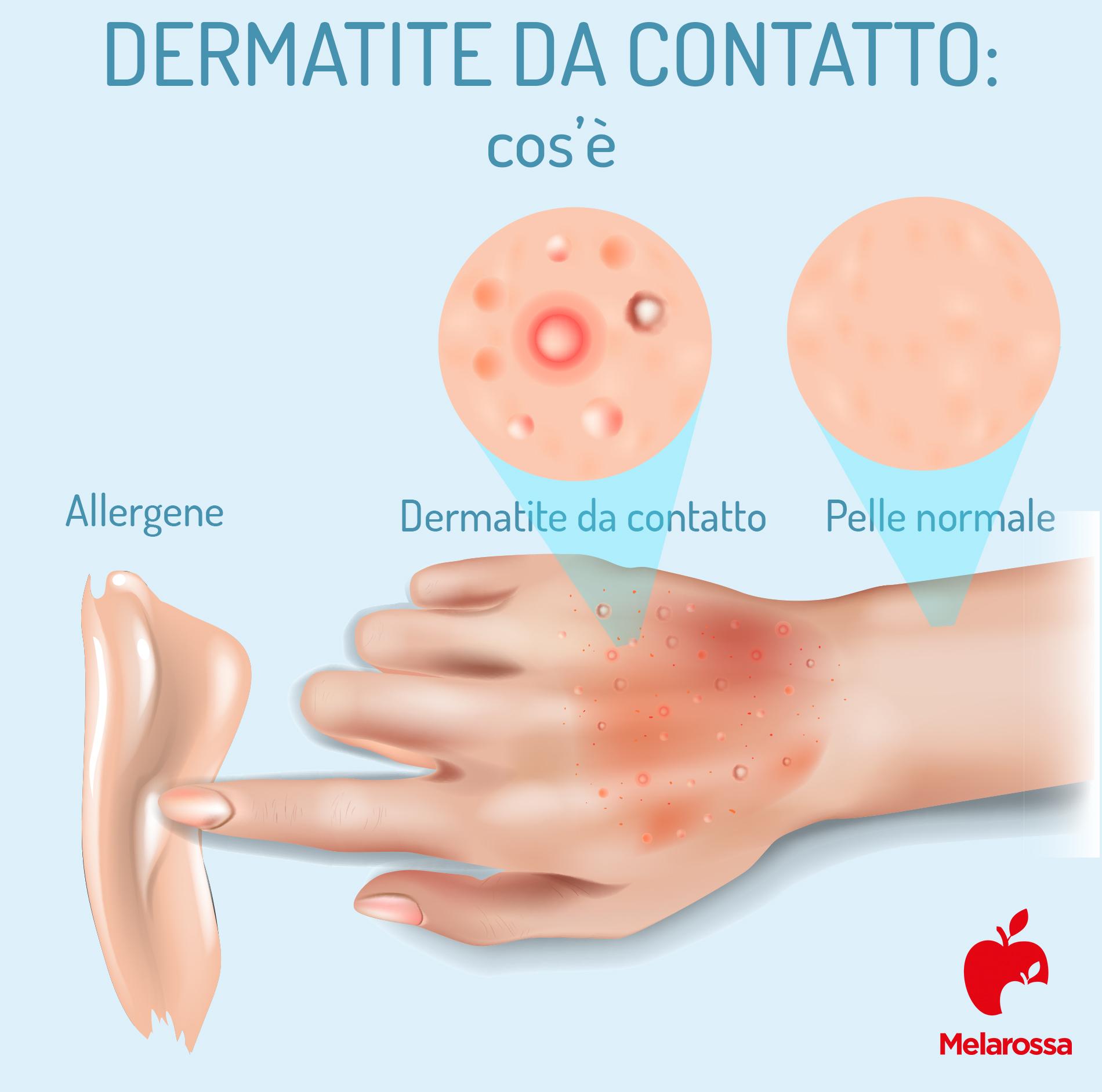dermatite da contatto: foto