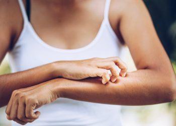 dermatite erpetiforme: cos'è, cause, sintomi, diagnosi e cure