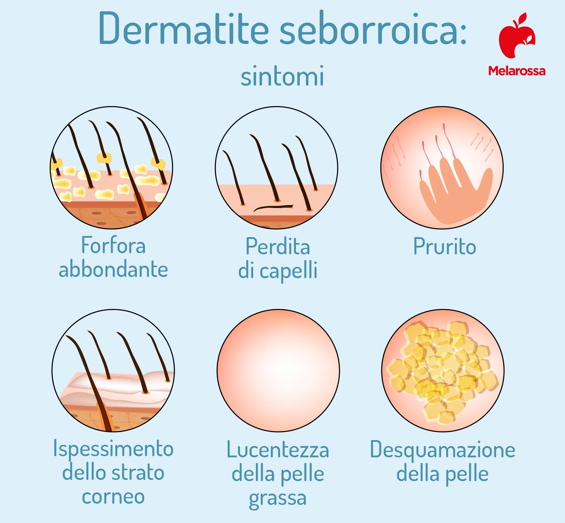 dermatite seborroica: sintomi