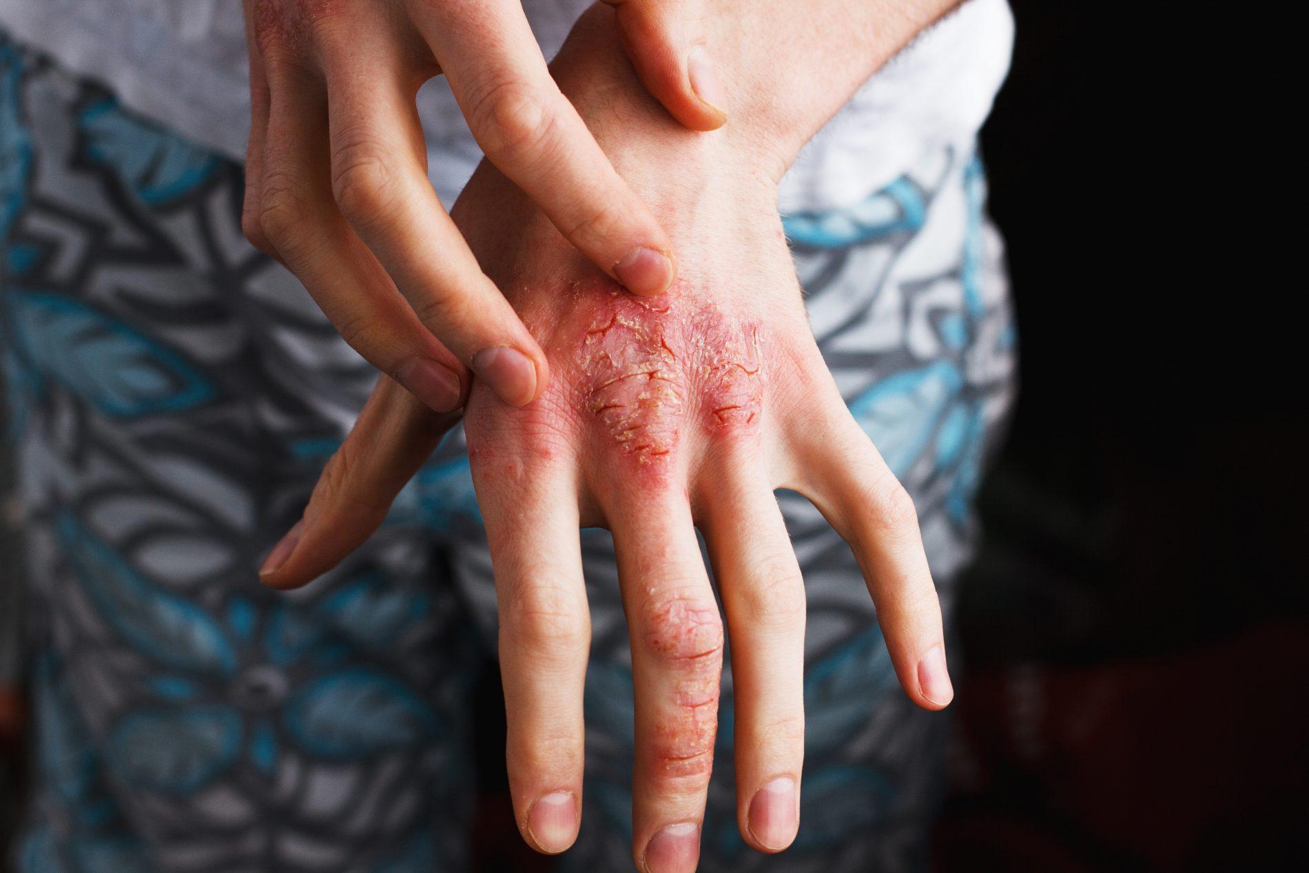 dermatiti: tipi e caratteristiche