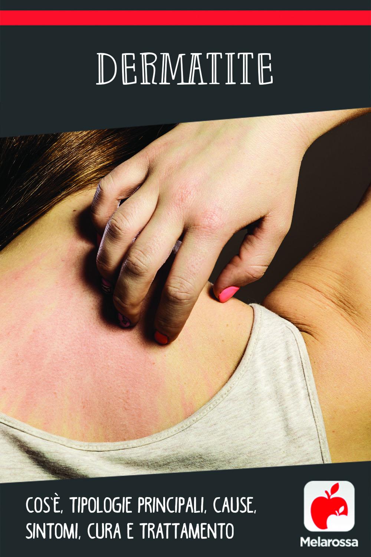 dermatite: cos'è, tipi, cause, sintomi e cure