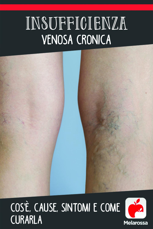 insufficienza venosa cronica: cos'è, cause, sintomi e cure