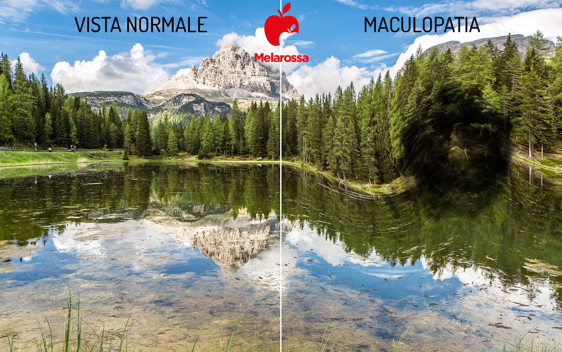 maculopatia: cure