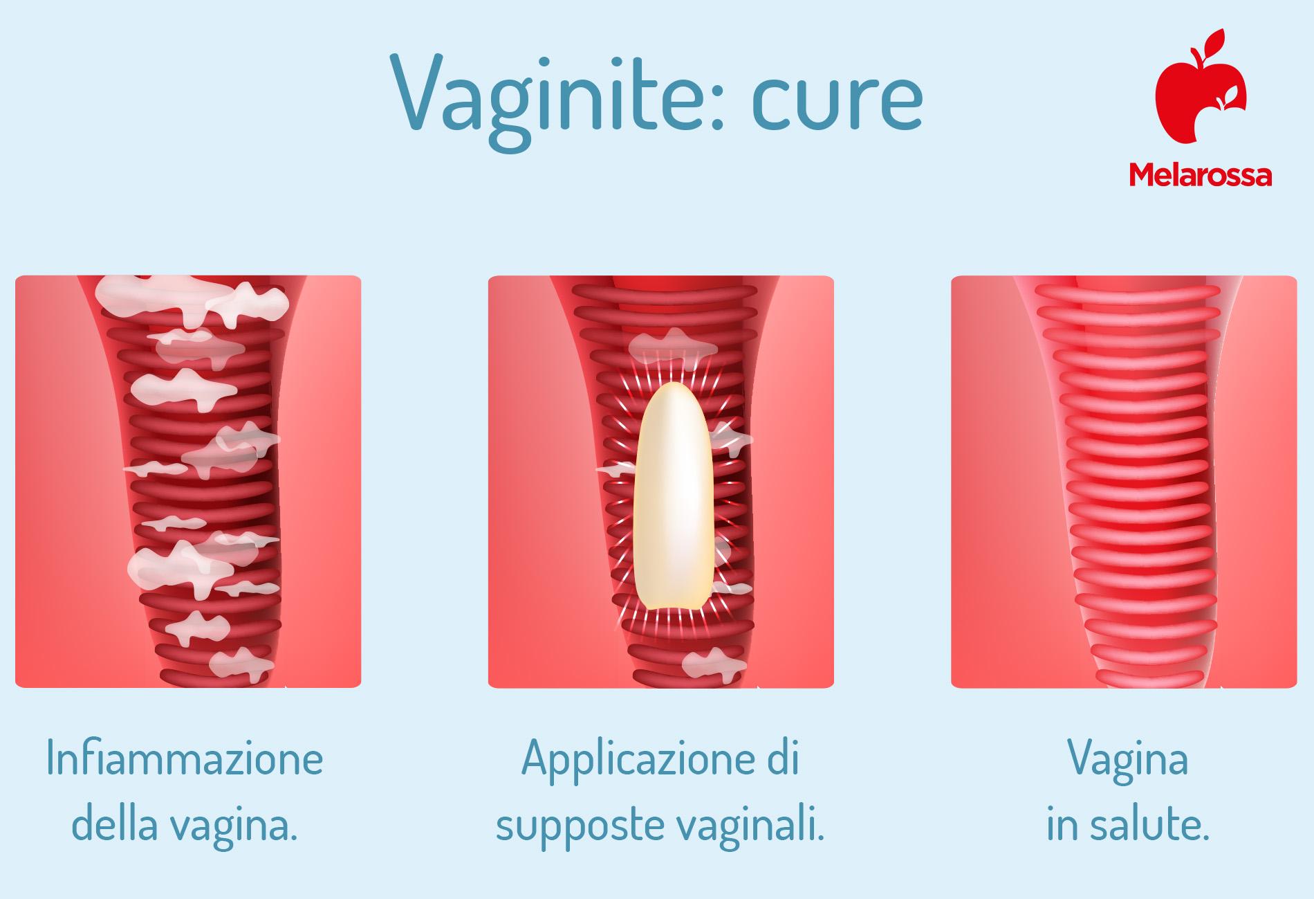 vaginite: cure