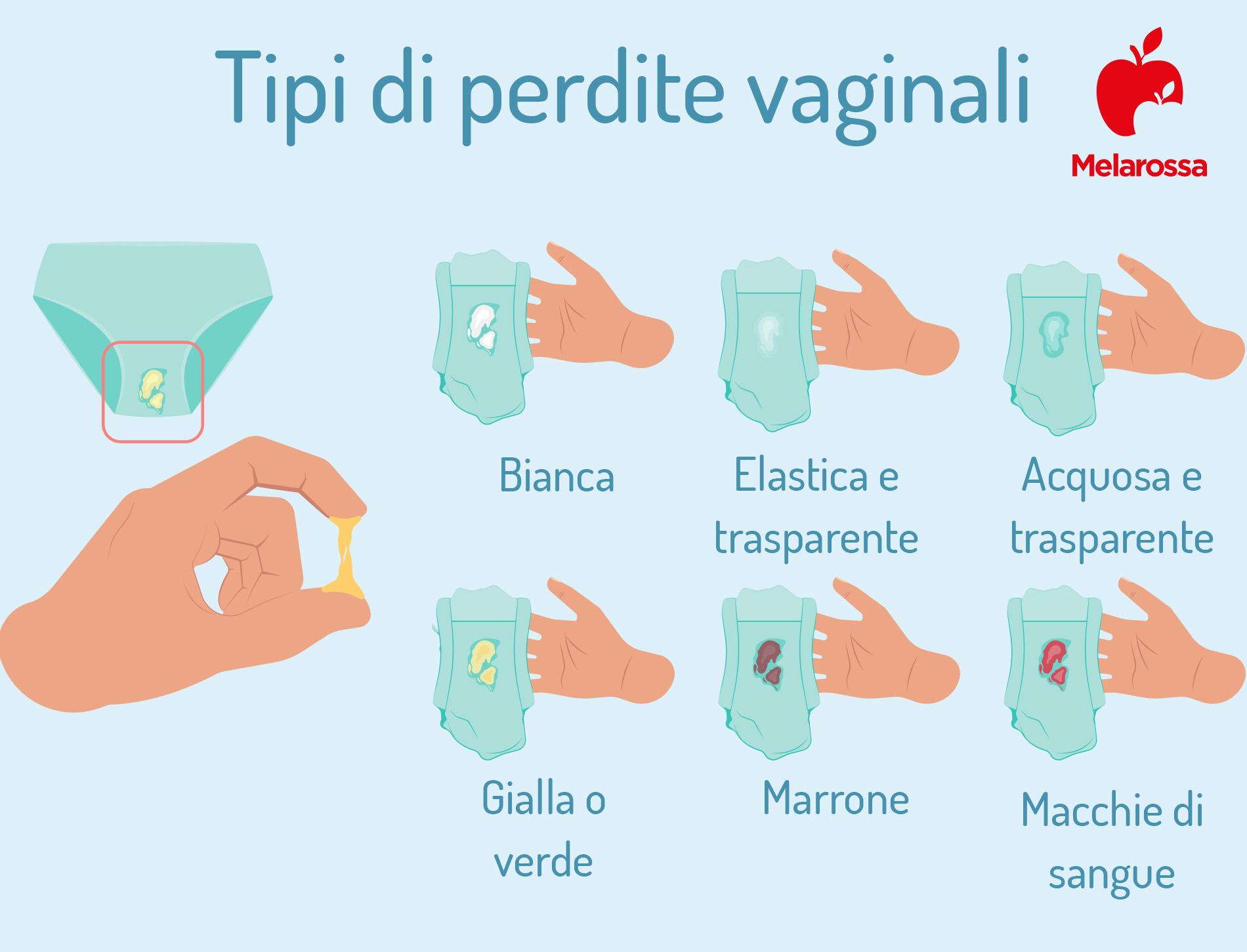 vaginite: tipi di perdite vaginale