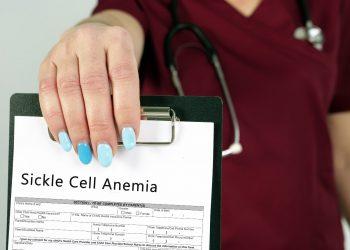 anemia falciforme: cos'è, cause, sintomi, diagnosi e cure