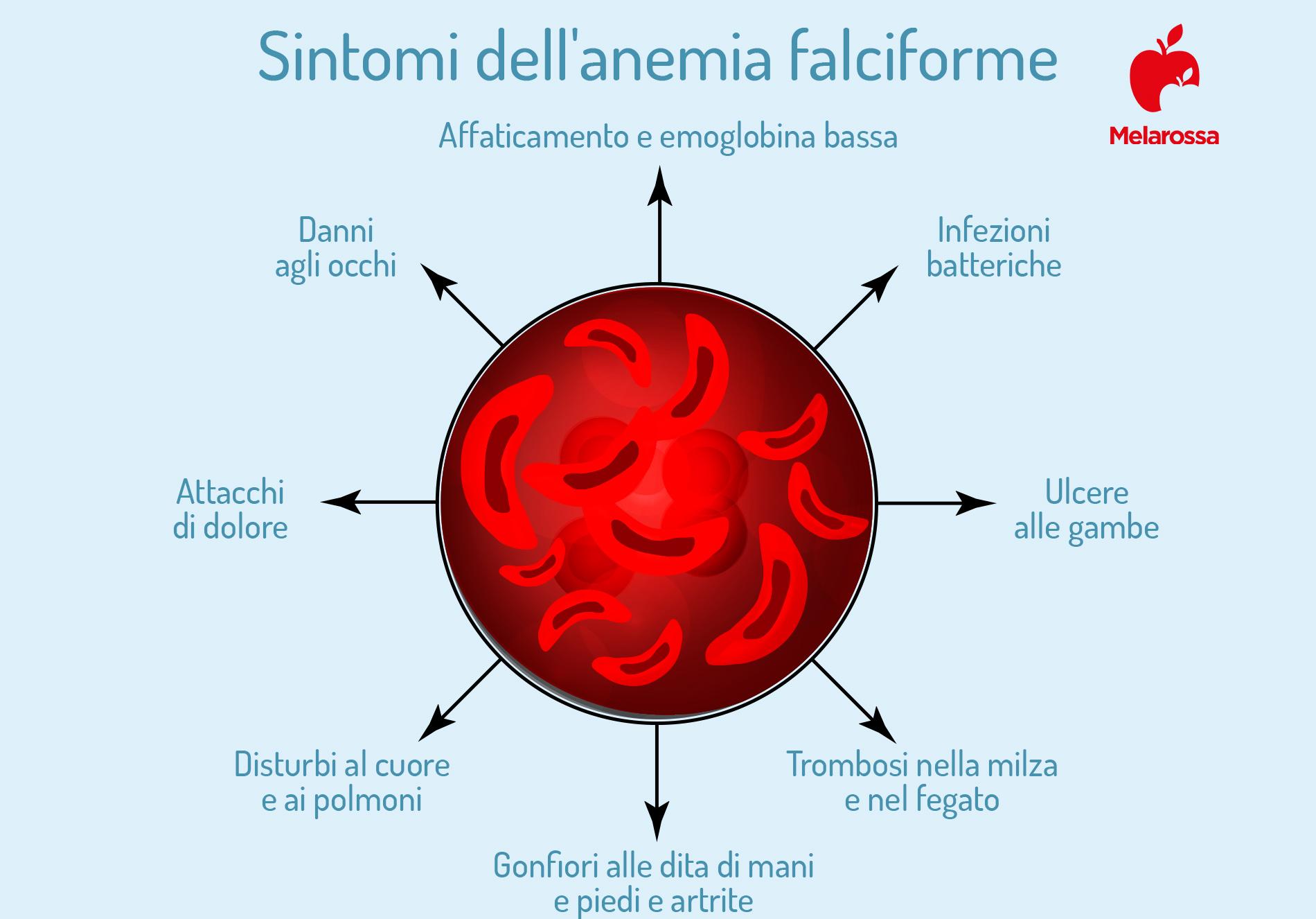 anemia falciforme sintomi
