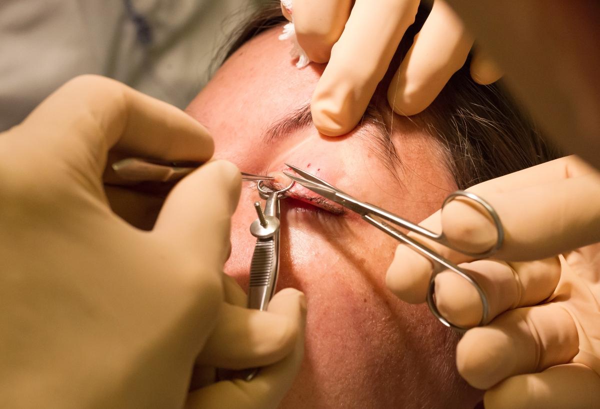 calazio: intervento chirurgico
