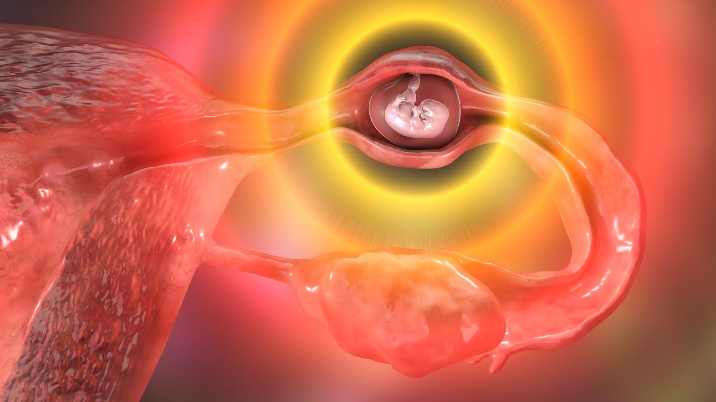 gravidanza extrauterina : GEU