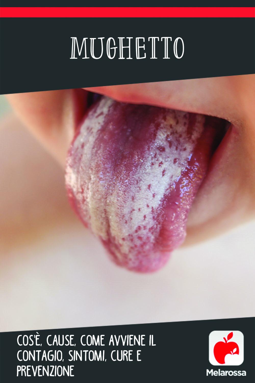 mughetto: cos'è, cause, sintomi e cure