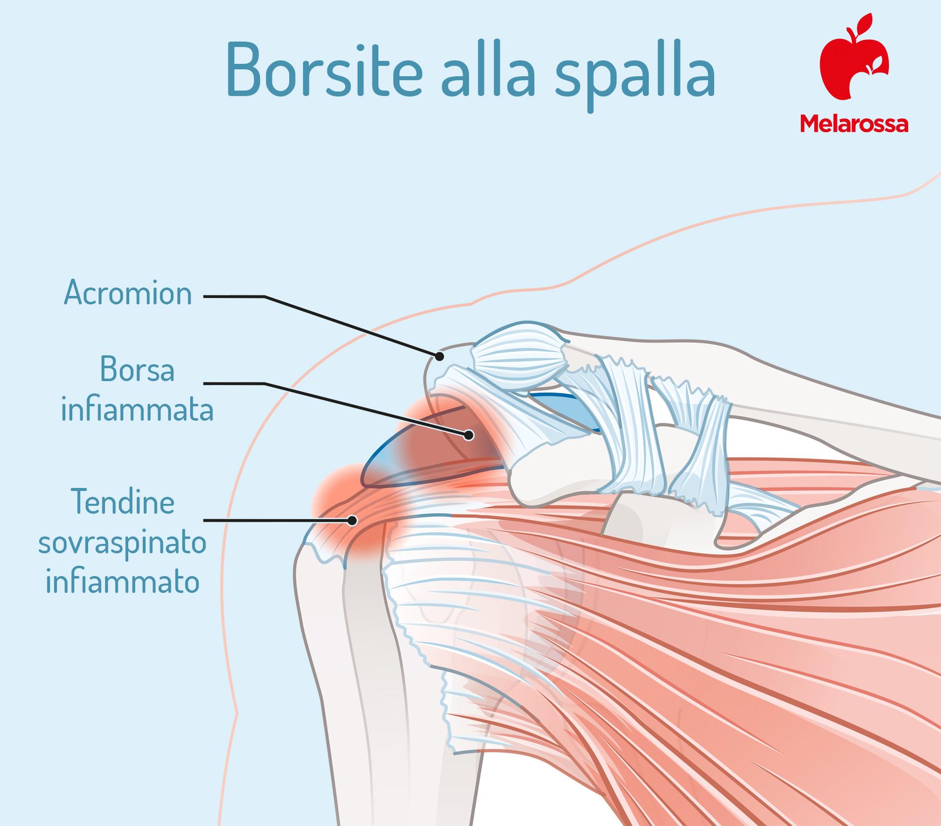 borsite alla spalla: sintomi