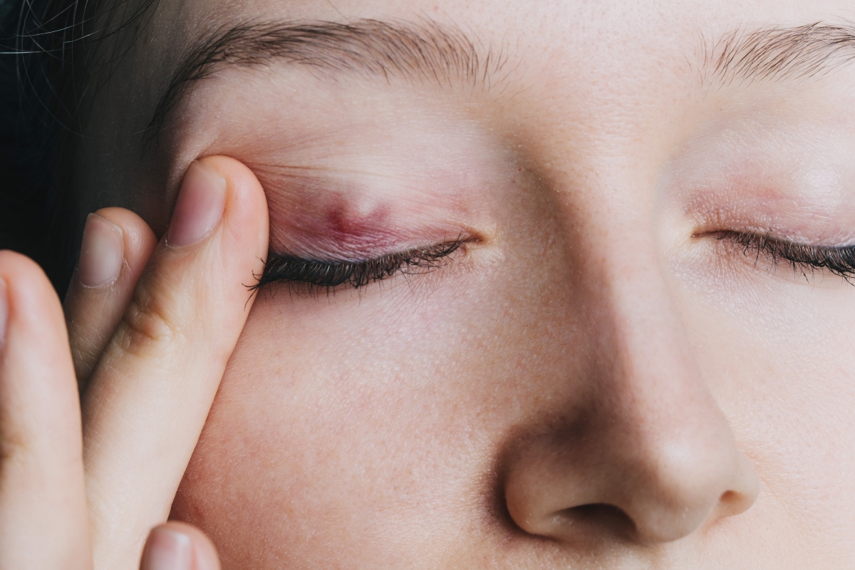 calazio: cos'è, cause, sintomi e cure