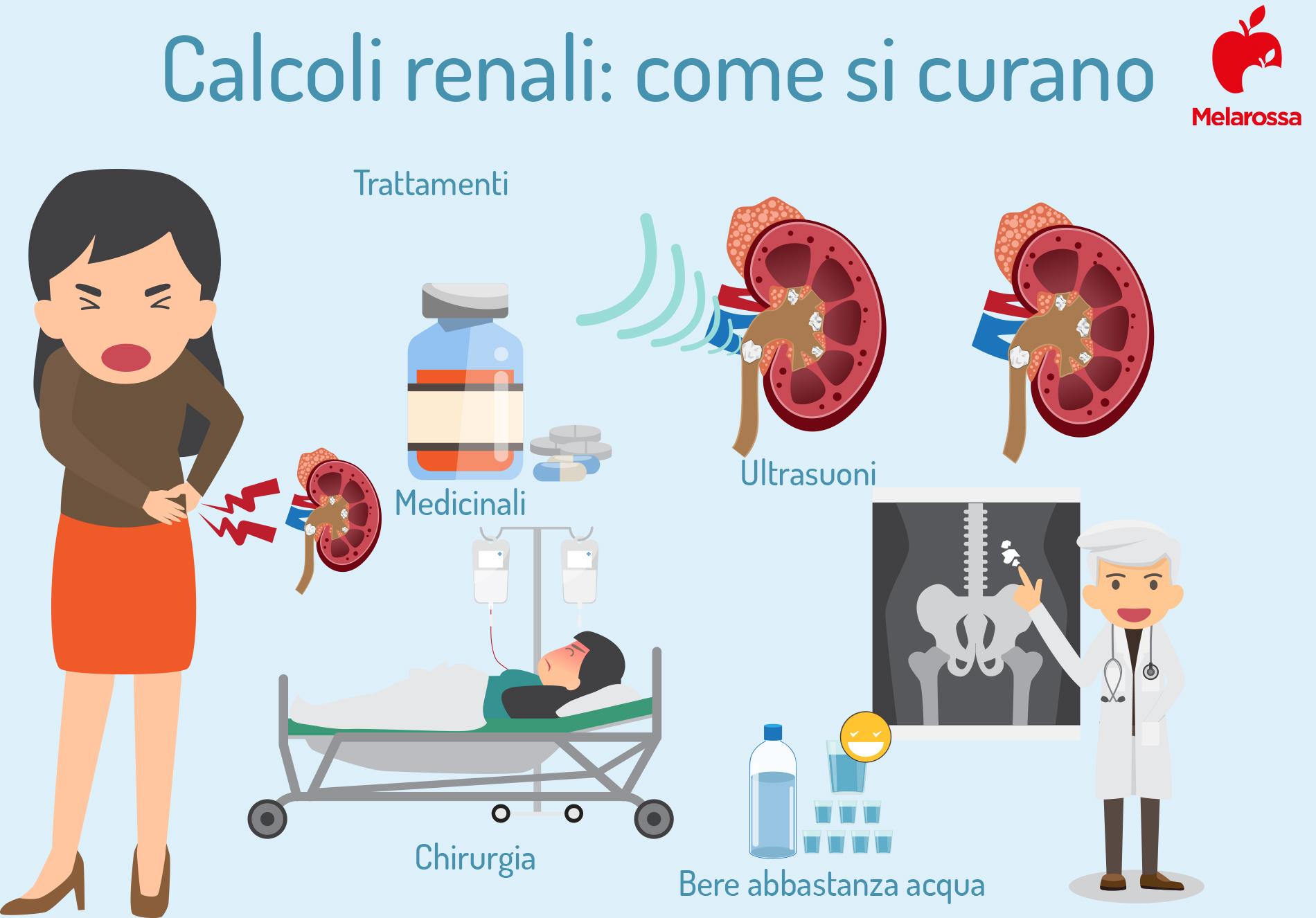 come curare i calcoli renali