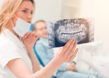 Denti del giudizio: cosa sono, sintomi, complicanze, quando toglierli