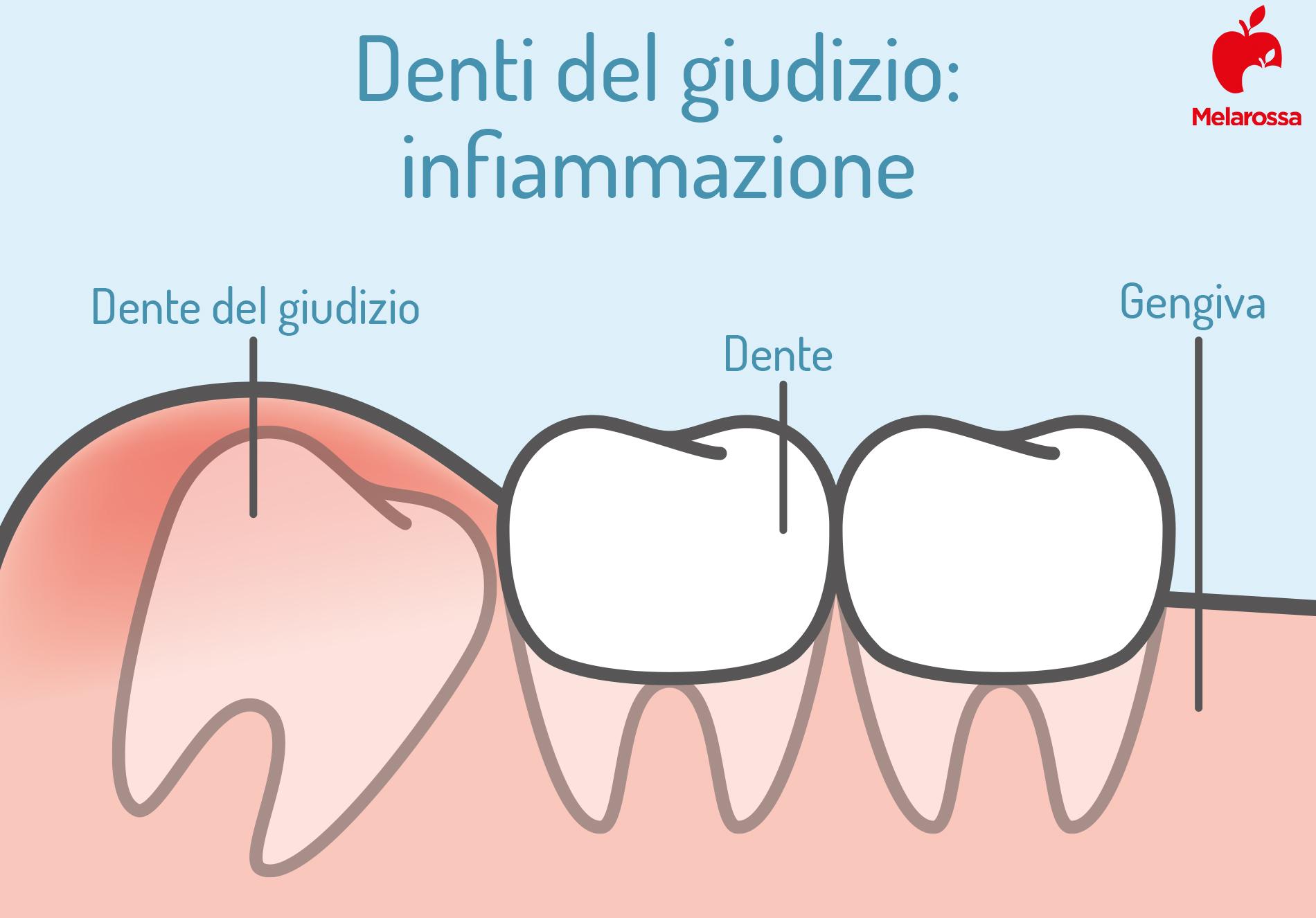 denti del giudizio: infiammazione